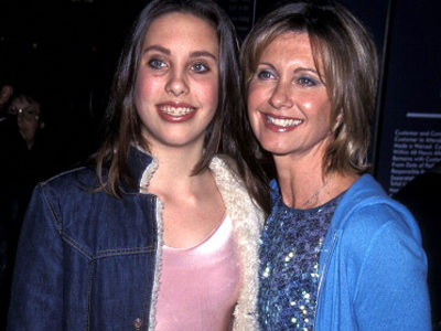 "Olivia Newton-John's Daughter Looks Nothing Like This Now -- Says Lip Fillers Were ""RIDICULOUS"""