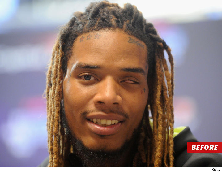 1031-fetty-wap-before-sub-GETTY-01