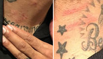 Matt Barnes -- Photos Of Nightclub Wounds ... I'm the Real Victim (PHOTO GALLERY)