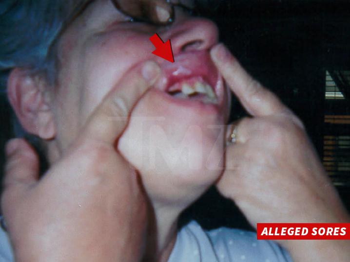 1213-ben-n-jerrys-icecream-mouth-sore-lawsuit-TMZ-03