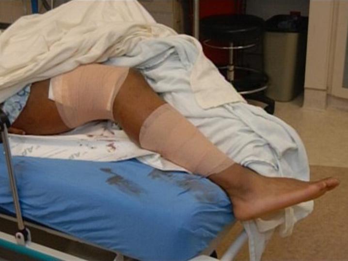 0127-aqib-talib-gunshot-wounds-02