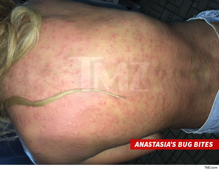 0301-Anastasia-Ashley-bug-bites-tmz