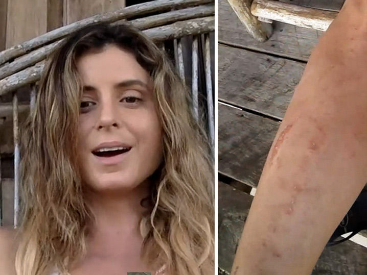 Anastasia Ashley Naked and Attacked by Sandflies! (VIDEO