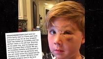 Kim Zolciak Posts Photo of Son Kash's Injured Face Post-Dog Bite (PHOTO)