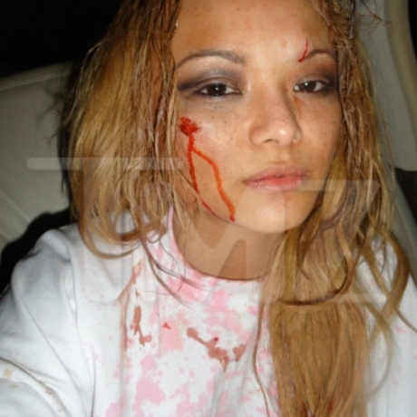 Tila Tequila Allegedly Beat Up at Concert