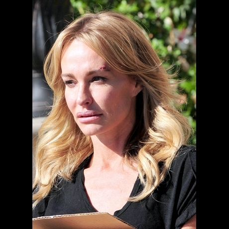 Taylor Armstrong Cut Bruise Eye Photo Gallery Pictures