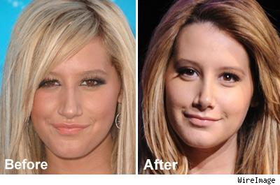 Ashley Tisdale Cuts Off Nose, Face Not Spited | TMZ.com