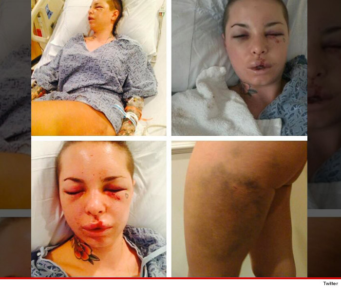 0811-christy-mack-injuries-twitter-02