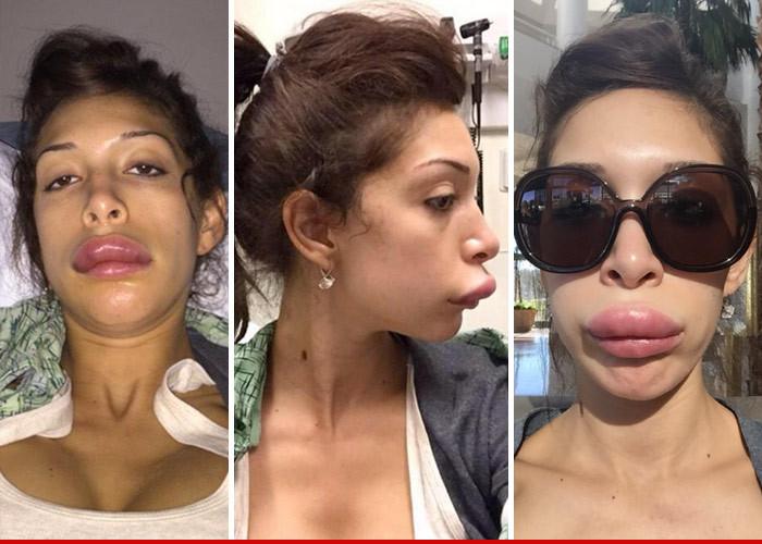 Farrah Abraham -- Pays Dearly for Lip Service | TMZ.com