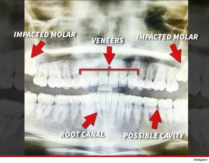 xray of perfect teeth - photo #41
