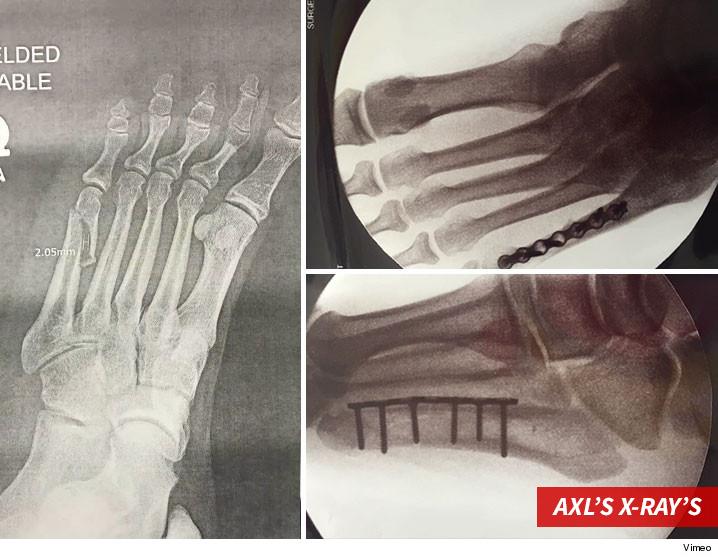 0408-axl-rose-broken-leg-signing-sub-xrays-autographs-TMZ-01
