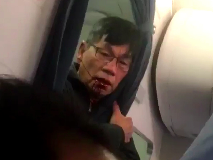Image result for name of the man beats by united airlines